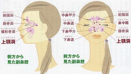 副 鼻腔 炎 蓄膿症 違い